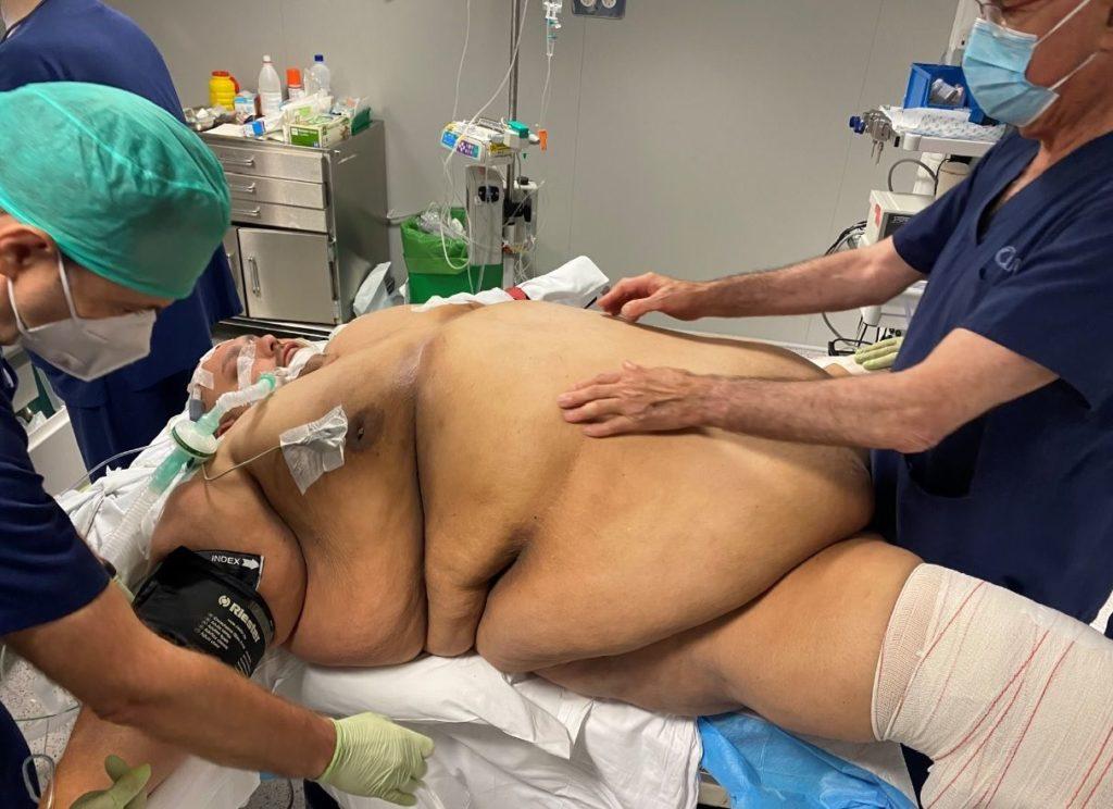 Foto de Emilio Jesús en mesa de operaciones